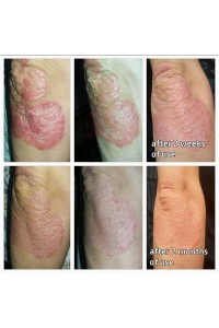 CLINICAL EXPERIENCE OF APPLICATION OF COMBINED NONHORMONAL THERAPY OF PSORIASIS